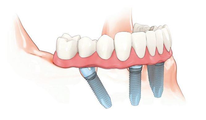 teeth4all